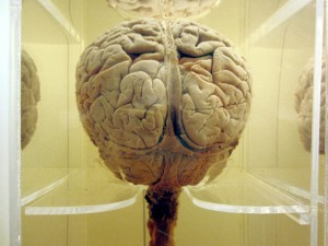 The Brain takes up to 30 percent of our daily calories
